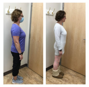 Erica Before and After Hormone Weight Loss Therapy | VIVA Wellness WI