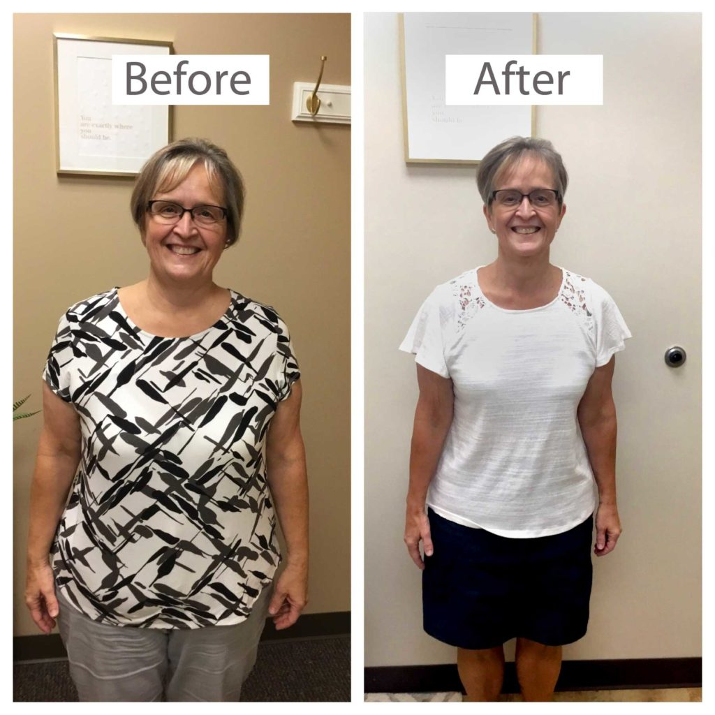 Lori Before and After Keto Diet Weght Loss | VIVA Wellness Milwaukee Weight Loss Clinic
