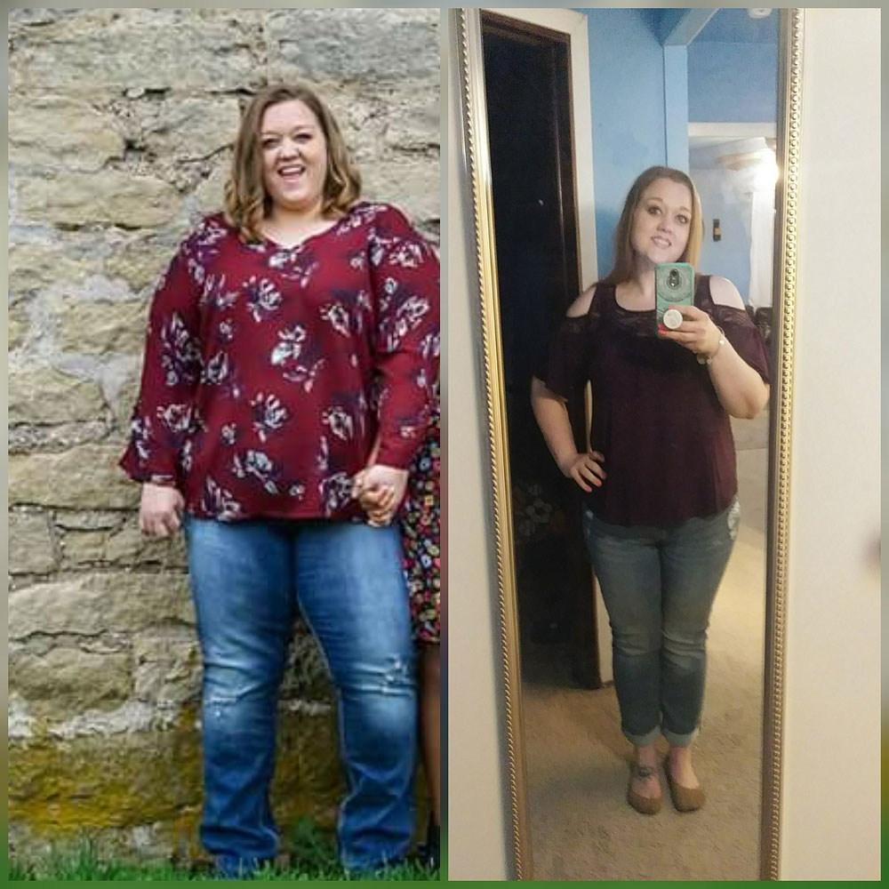 Medical Weight Loss Before and After VIVA Wellness Milwaukee WI